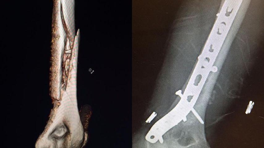 Bruch des Oberarmknochens: Lindsey Vonns Röntgenbild