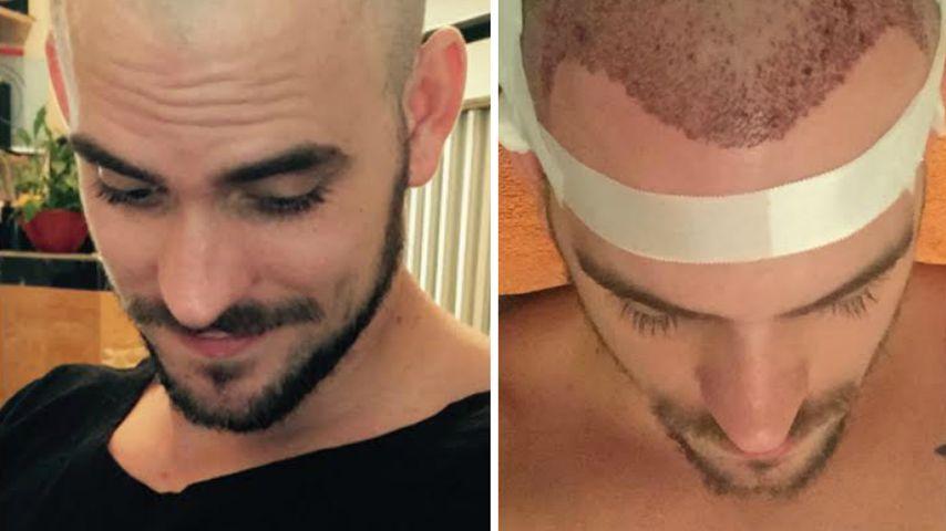 Haar-Transplantation: Marc Barthel hat bald die Haare schön