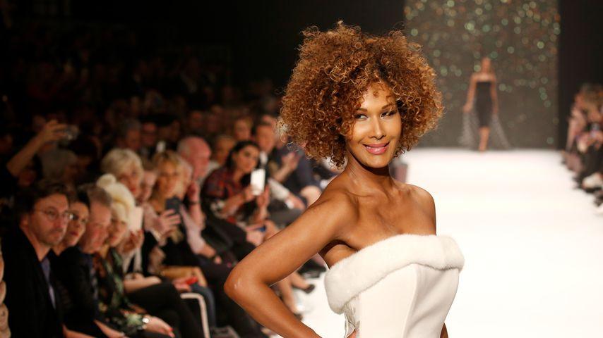 Zu viel Stress: Model Marie Amière hatte starken Haarausfall