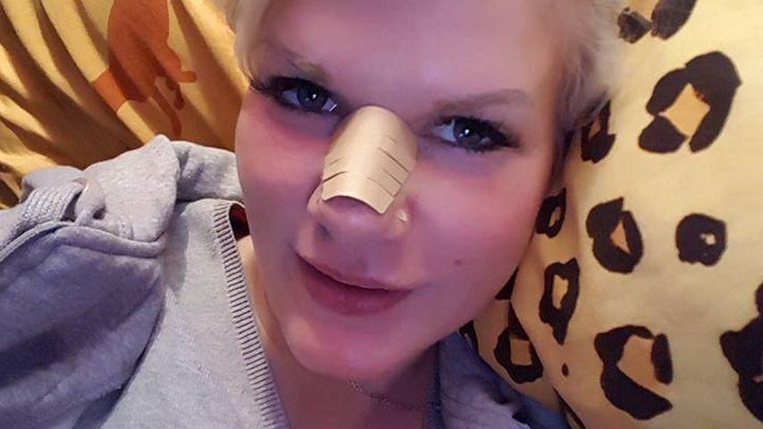 Nach Nase, Augen & Hüfte: Auch Melanie Müllers Po ist neu!