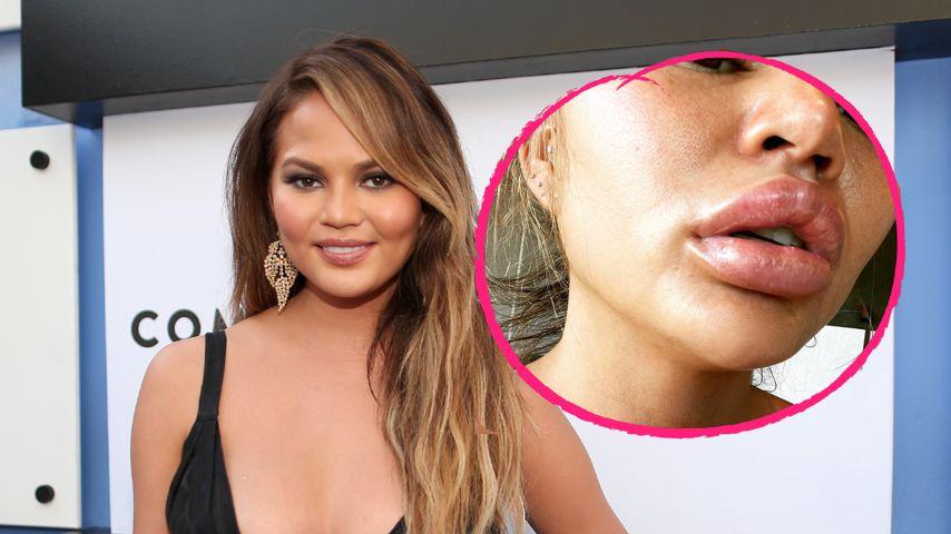 Chrissy Teigen mit XL-Lippen: War sie etwa beim Beauty-Doc?