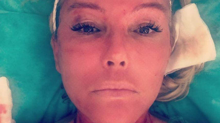 Blutige Bilder: Natascha Ochsenknecht beim Vampir Lifting!