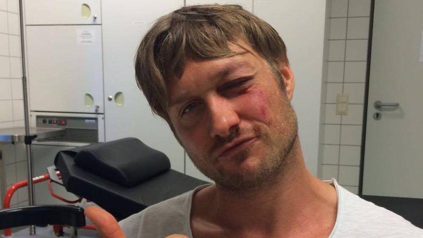 """""""Wie nach einem Boxkampf"""": Nico Schwanz bei Unfall verletzt"""