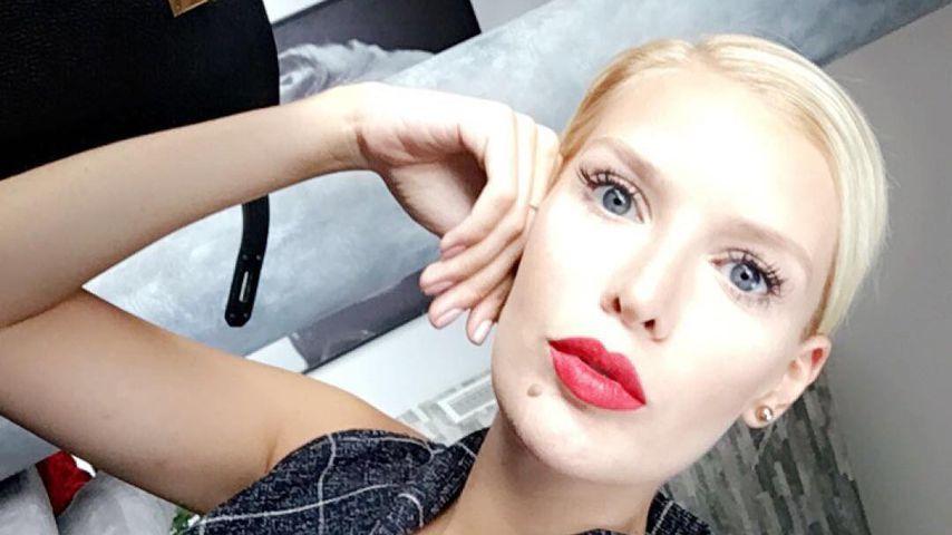 Autsch: Oksana Kolenitchenko hat sich den Zeh angebrochen!