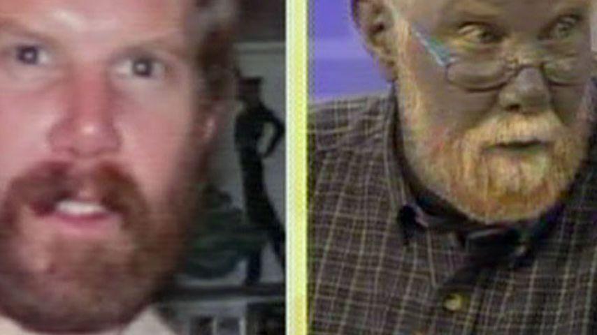 """""""Schlumpf-Mann"""": Die Farbe zerstörte sein Leben!"""