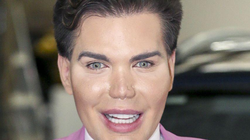Real-Life-Ken: Ich habe es mit Beauty-OPs nicht übertrieben!