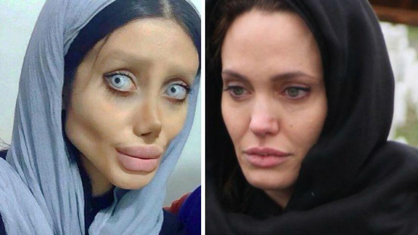 OP-Overload: Diese Frau wollte aussehen wie Angelina Jolie!