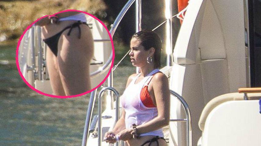 Tapfere Selena: Ganz offen zeigt sie OP-Narbe im Bikini!