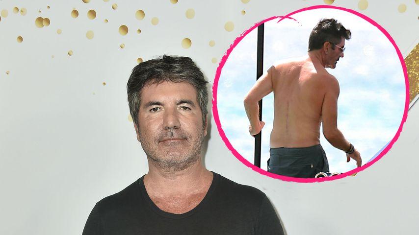 Fahrradunfall: Simon Cowell hat eine große Narbe am Rücken