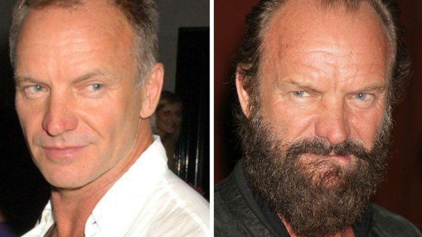 Nanu! Was ist denn mit Sänger Sting passiert?