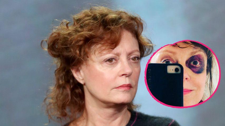 Riesiges Veilchen: Was ist mit Susan Sarandon passiert?