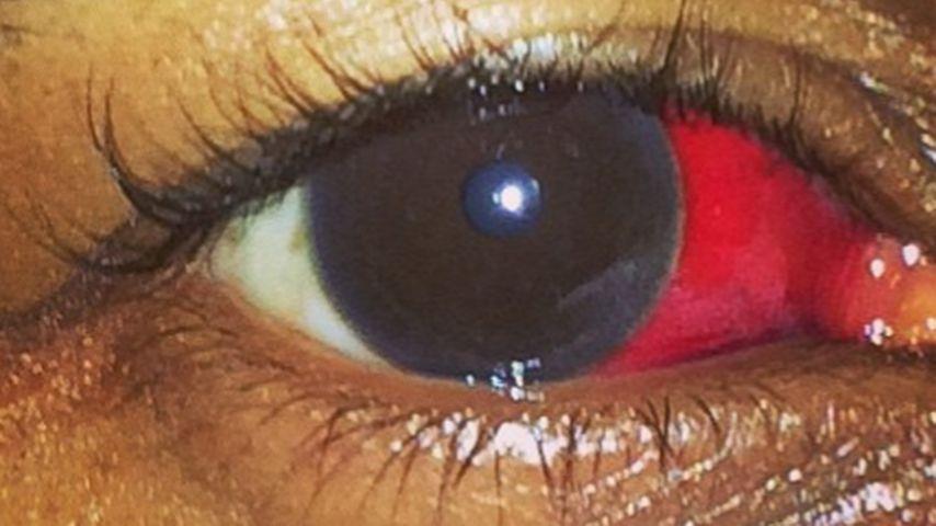 Usher zeigt Aua-Auge! Ist DAS ein Prügel-Beweis?