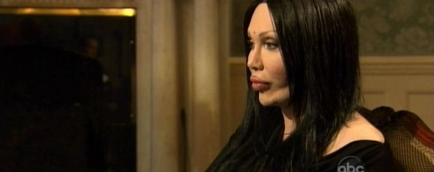 "Pete Burns in der US-TV-Show ""Celebrity Plastic Surgery: Gone Too Far"""